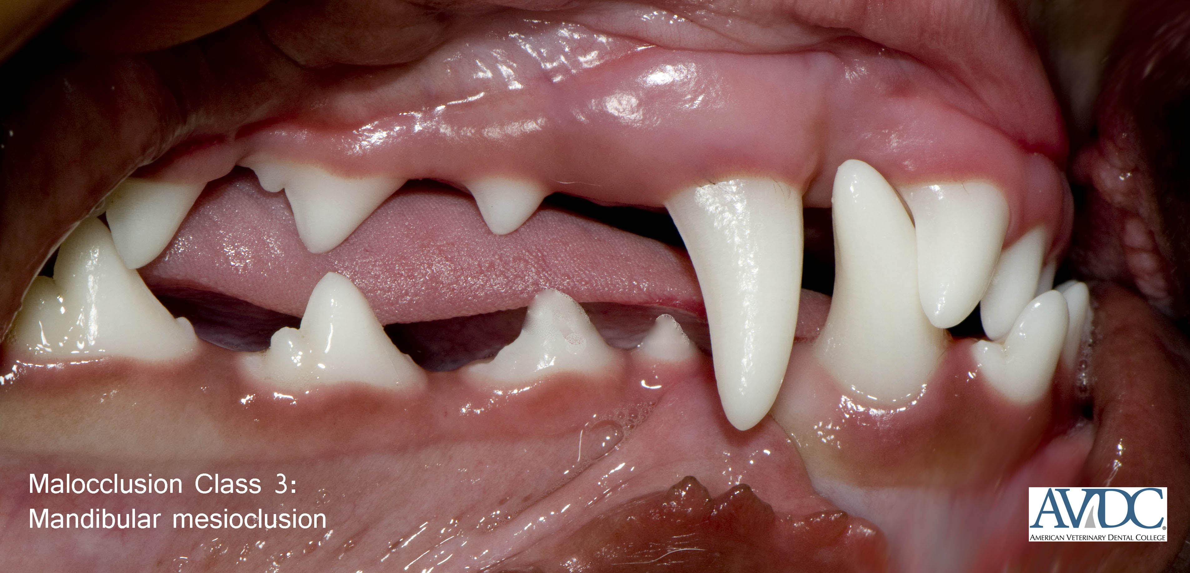 Mandibular mesioclusion %28class 3%29 buccal - Malocclusions (misaligned teeth)