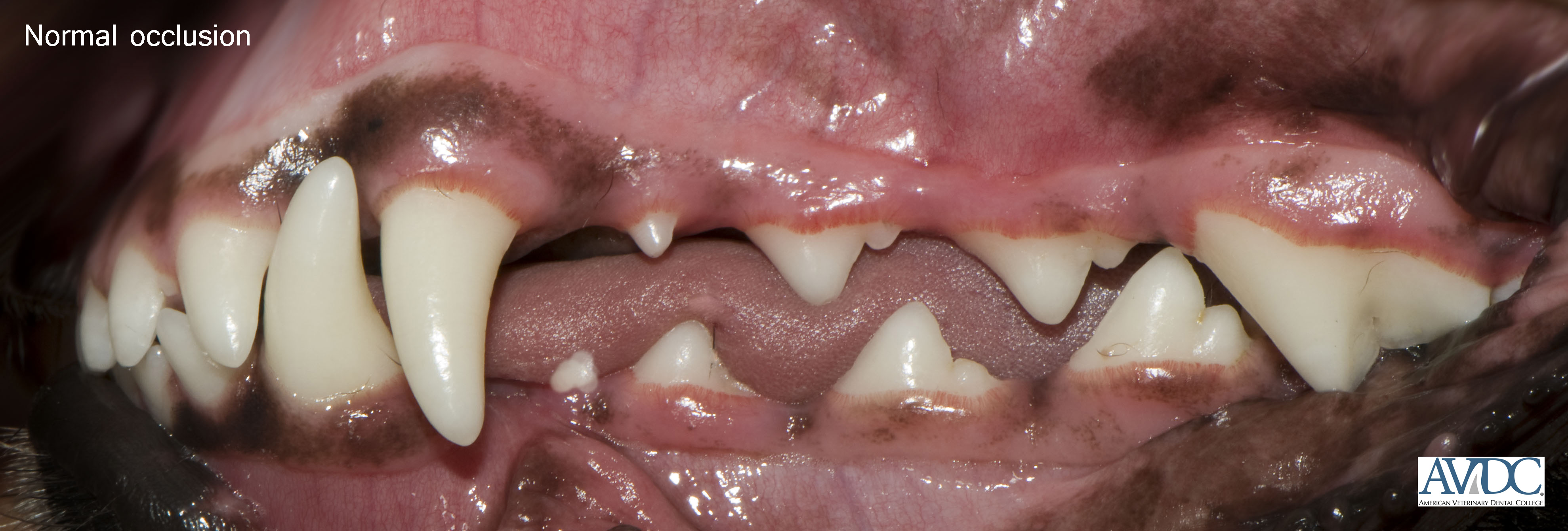 Normal buccal 2 - Malocclusions (misaligned teeth)