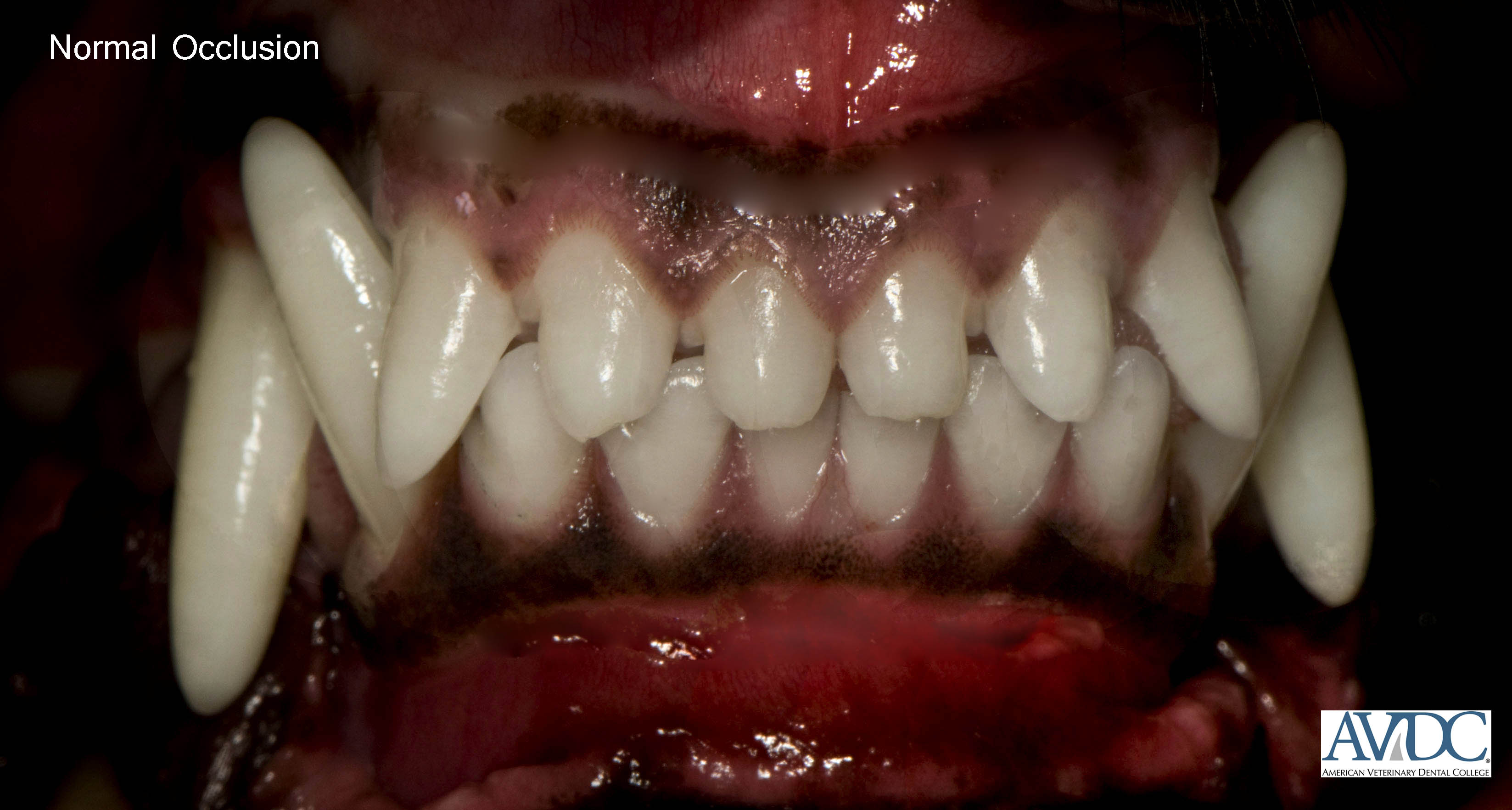 Normal rostral - Malocclusions (misaligned teeth)